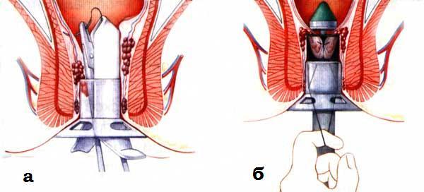 Растояние между влагалищем и анусом