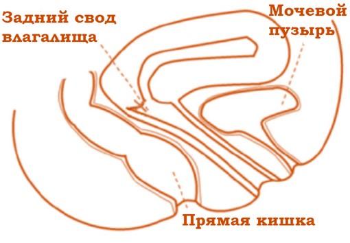 Влагалище в разрезе патологоанатом фото 707-754