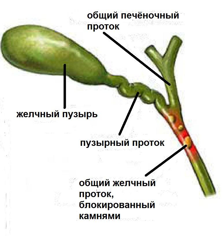 Холедохолитиаз фото