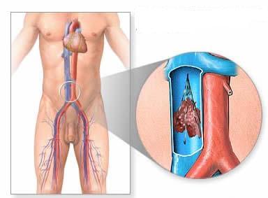 Лечение варикоза мускатным орехом