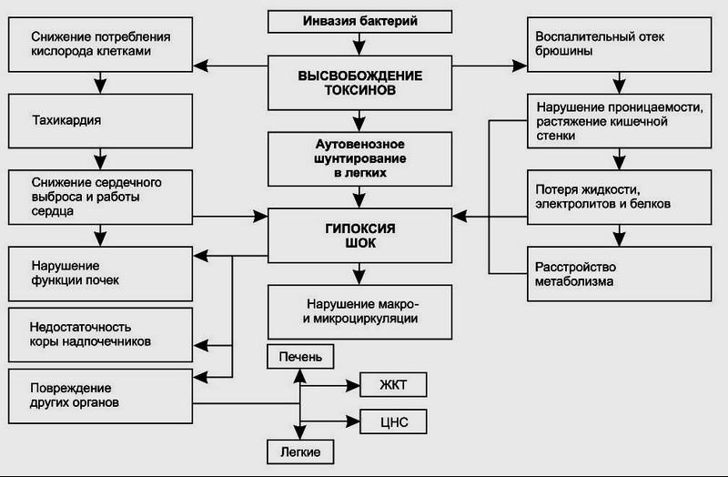 Перфорация отростка с развитием диффузного или разлитого перитонита