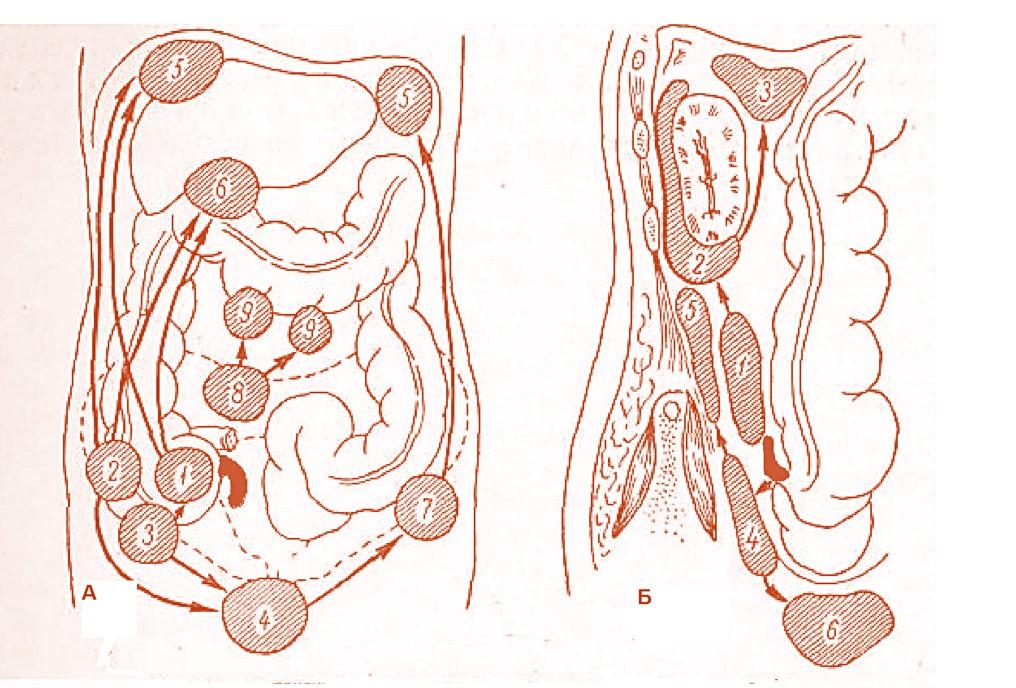 appendicit.htm