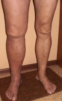Суральные вены голени анатомия
